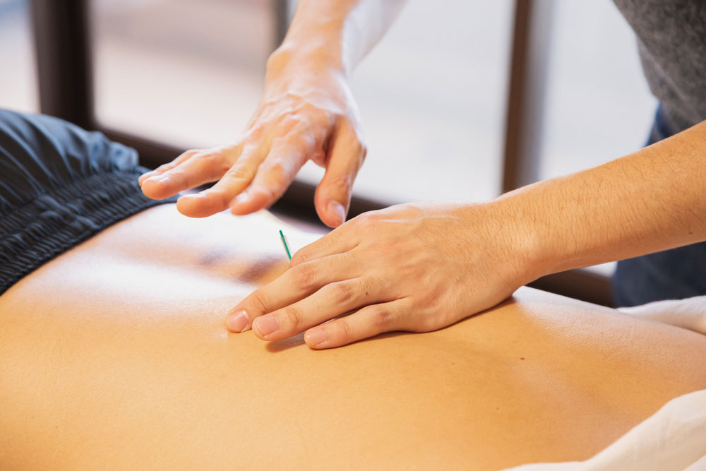 Person receiving acupuncture treatment on their back