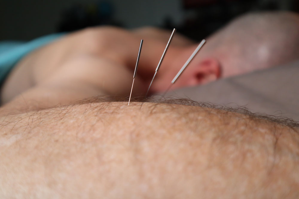 Man receiving Acupuncture treatment in elbow